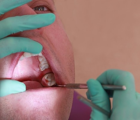 Philadelphia Oral Surgeon Can Help Prevent Wisdom Teeth Side Effects | Dr. Anthony Farole, D.M.D. | Scoop.it