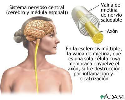 Neurólogos andaluces presentan los datos preliminares de un estudio sobre el tratamiento con células madre en la Esclerosis Múltiple | PRODUCTOS NATURALES | Scoop.it