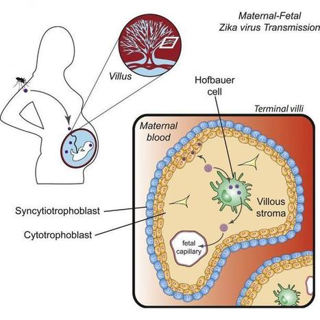 Zika virus infects human placental macrophages | Insect Archive | Scoop.it