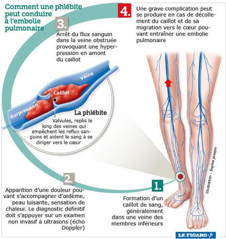 Un nouveau traitement pour les phlébites | Veille Pharma | Scoop.it