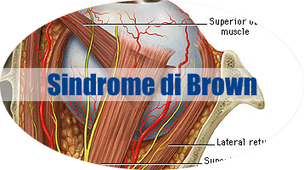Sindrome di Brown • Strabismo - Dr. Maria Elisa Scarale | Oculista News | Scoop.it