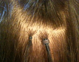 Micro Loop Hair Extensions | Human Hair Extensions | Scoop.it