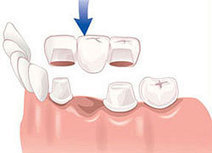 Tooth Replacement Services | Tooth Replacement Services | Scoop.it