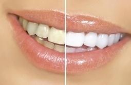 teethwhiteningguide | Dental Health | Scoop.it