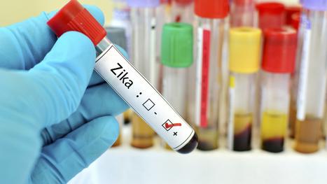 Zika: un test de diagnostic rapide autorisé aux Etats-Unis | EntomoNews | Scoop.it