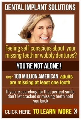 New Teeth One Day - Dr. Rogers | Prestige Dental Center Colorado | Lets Talk about Dental Implants | Scoop.it
