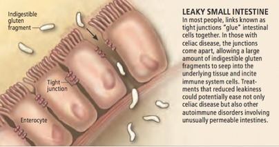 Leaky Gut - The Syndrome Linked to Many Autoimmune Diseases - Jill Carnahan, MD   Health and healing   Scoop.it