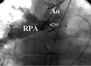 ScienceDirect.com - The Annals of Thoracic Surgery - Covered Stent Treatment of Right Pulmonary Artery Stenosis and Waterston Shunt | Tetralogy of Fallot (TOF) | Scoop.it