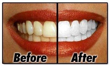 Affordable Teeth Whitening Services in Springwood   IPL Skin Rejuvenation Springwood   Scoop.it