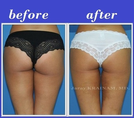 Bangkok Aesthetic Surgery Center: Cheapest Thigh Liposuction In Thailand | Bangkok Aesthetic Surgery | Scoop.it