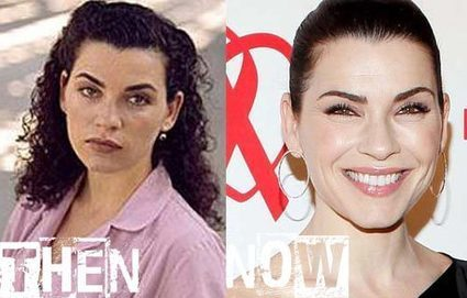 Julianna Margulies Plastic Surgery Before & After Photos | Celebrity Plastic Surgery | Scoop.it