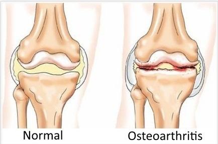 Osteoarthrosis Treatment | Sports Injury Specialist | Scoop.it