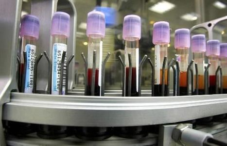 AHS delays plan to further privatize Edmonton lab services   ABPoli   Scoop.it