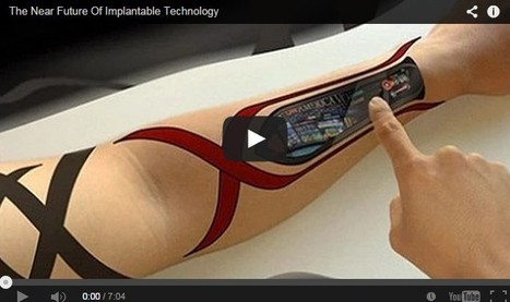 The Future of Implantable Technology | 21st Century Innovative Technologies and Developments as also discoveries, curiosity ( insolite)... | Scoop.it