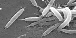Ulcer-forming Bacteria Target Tiny Traumas | The Scientist Magazine® | Longevity science | Scoop.it