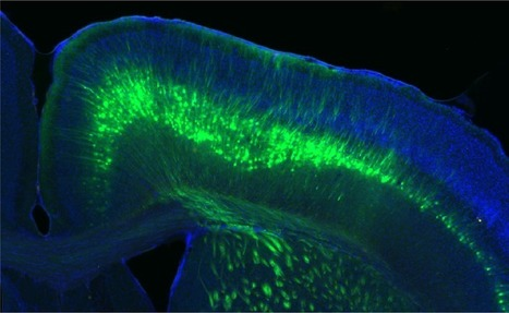 By hacking cells' DNA, virus traces brain activity patterns | DNA and RNA Research | Scoop.it