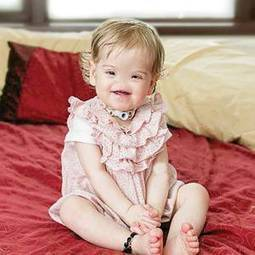 Mum of Tessa - born without a nose - opens her heart about family's struggle ... - Belfast Telegraph | Get Good Plastic Surgery & The Best Nose Jobs in Goa, India | Scoop.it