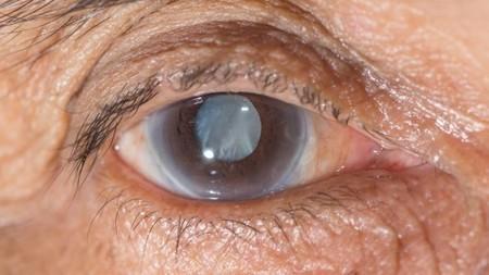 In-eye sensor to keep a watch on changes in intraocular pressure | Optometry | Scoop.it