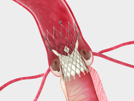 Medtronic's CoreValve Aces Clinical Trial, Gets Speedy FDA Approval | Digital Optical Biopsy | Scoop.it