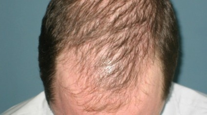 New Study Brings is a Step Closer to Male Pattern Baldness Cure | Hair Transplant News | Scoop.it