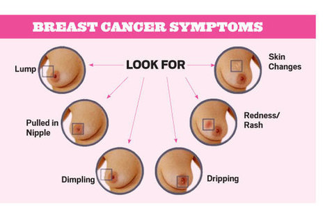 Breast cancer cases on the rise as Uganda marks world cancer month - National   Trending in Uganda   Scoop.it