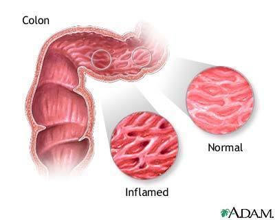 Nueva Guía NICE de la enfermedad de Crohn | healthy | Scoop.it