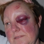 Care home owner kicked to ground in car robbery | Race & Crime UK | Scoop.it