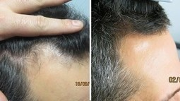 Case Study: Patient Seeks Hair Loss Cure - Ashley and Martin Hair Loss Blog | Hair Regrowth | Scoop.it