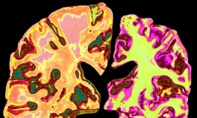Gene linked to long life also protects against mental decline in old age | Social Neuroscience Advances | Scoop.it