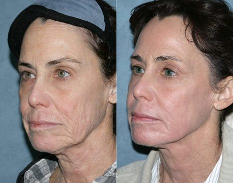 Non Surgical Nose Job San Diego | dermalfillersdr | Scoop.it