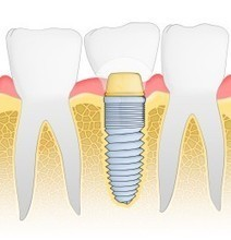 Dentist Advises That Dental Implants Reduce Long-Term Dental Costs | Everything You Need To Know About Dental Implants | Scoop.it