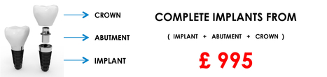Welcome to the Marylebone Implant Centre | Best dental care | Scoop.it