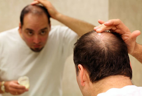 Folliculitis and Associated Problem of Hair Loss   Hair and Skin   Scoop.it