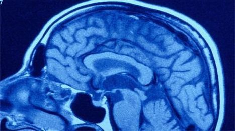 Musiikki on aivoille halpa ja hyvä hoitaja | Yle Uutiset | yle.fi | Mielenkiintoista & Hyödyllistä & Uutta | Scoop.it