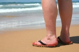 Varicose Veins Affect More Than 15% of Adults | My Bukmarks | Scoop.it