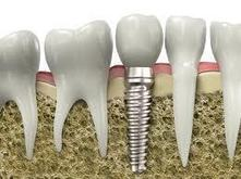 Advantages Of Dental Implants | NS Health Network Canada | Elite-Dentistry | Scoop.it