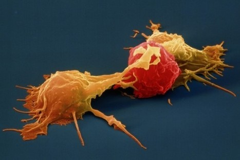 Stem Cell Therapy for Cancer Treatment Using NK Cells in India | Surgical India: Acess the various networks of surgical platforms established in India | Scoop.it