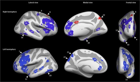 Effect of Childhood Adversity on Brain Structure in Young Men | Exploring Life | Scoop.it