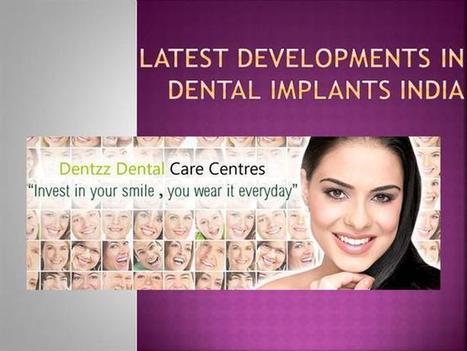 Latest developments in Dental Implants India | Dentzz Dental Care | Scoop.it