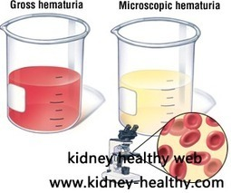 Treatment for Hematuria In Renal Parenchymal Disease - Kidney Healthy Web | kidney | Scoop.it