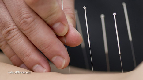 Acupuncture: From quack science to proven medical treatment | Acupuncture | Scoop.it