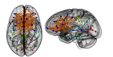 Scans Reveal Big Difference In Male, Female Brains | Gender and Crime | Scoop.it