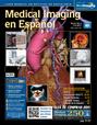 Es Medical imaging - Radiografía - Noticias de radiologia del dia | LA TELERADIOLOGIA COMO AYUDA DIAGNOSTICA | Scoop.it