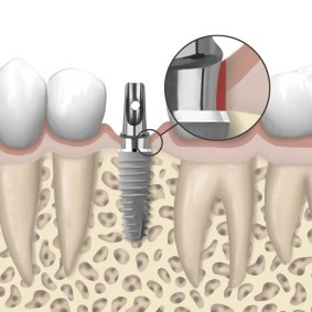 XiVE® Platform-Switch  Restoration of implants with diameter-reduced abutments | Dental Implant and Bone Regeneration | Scoop.it