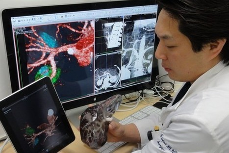 Next to Use 3-D Printing: Your Surgeon   Additive Manufacturing News   Scoop.it