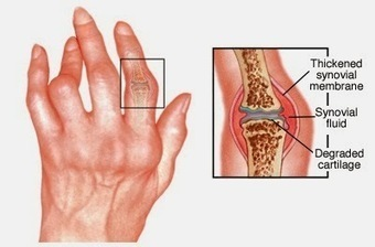 How Rheumatoid Arthritis differ from Osteoporosis | Birth-control Pills | Scoop.it