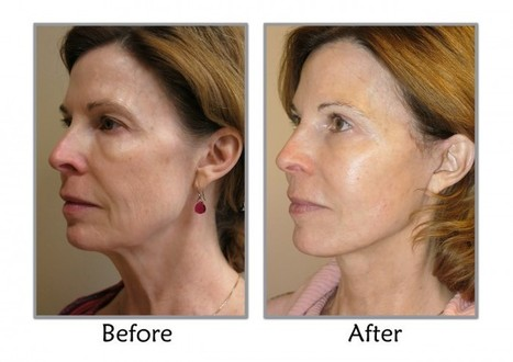 SLC Ut; Thompson Facial Plastics Explains The MACS Facelift Difference   Facial Plastics   Scoop.it