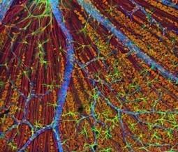 Mutaciones en el gen PNPLA6 provocan ciertos tipos de ceguera infantil | Salud Visual (Profesional) 2.0 | Scoop.it