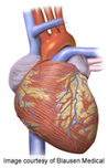 Anthracycline, Trastuzumab for Breast CA Up Heart Failure Risk | Breast Cancer News | Scoop.it