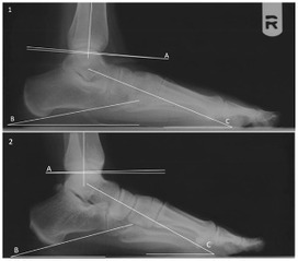 Lucy's Flat Feet: The Relationship between the Ankle and Rearfoot Arching in Early Hominins | Archaeology Articles and Books | Scoop.it